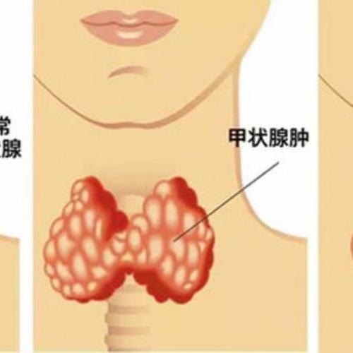 甲状腺结节离癌多远?能治愈吗?医生为您答疑解惑...