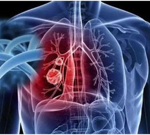 发现了肺结节,要确诊肺癌,是做穿刺活检还是PETCT