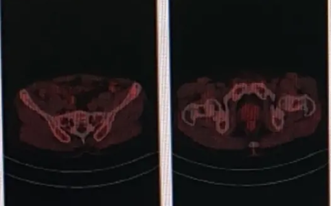 左下肺癌术后复查,做PETCT检查-全国PETCT/MR检查预约网_癌症筛查_肿瘤复查_高端体检