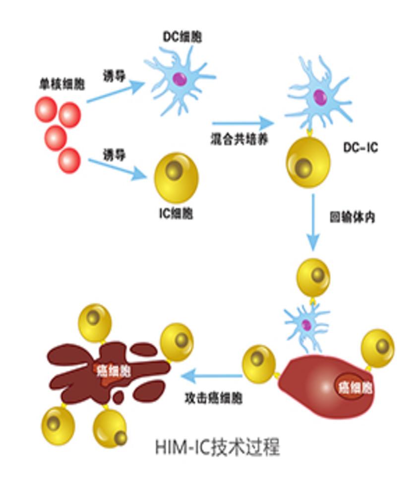 HIM-IC细胞治疗技术平台
